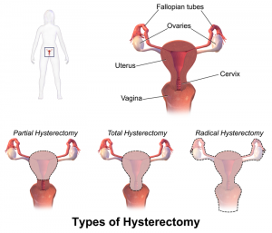 Types of Lavh Surgery