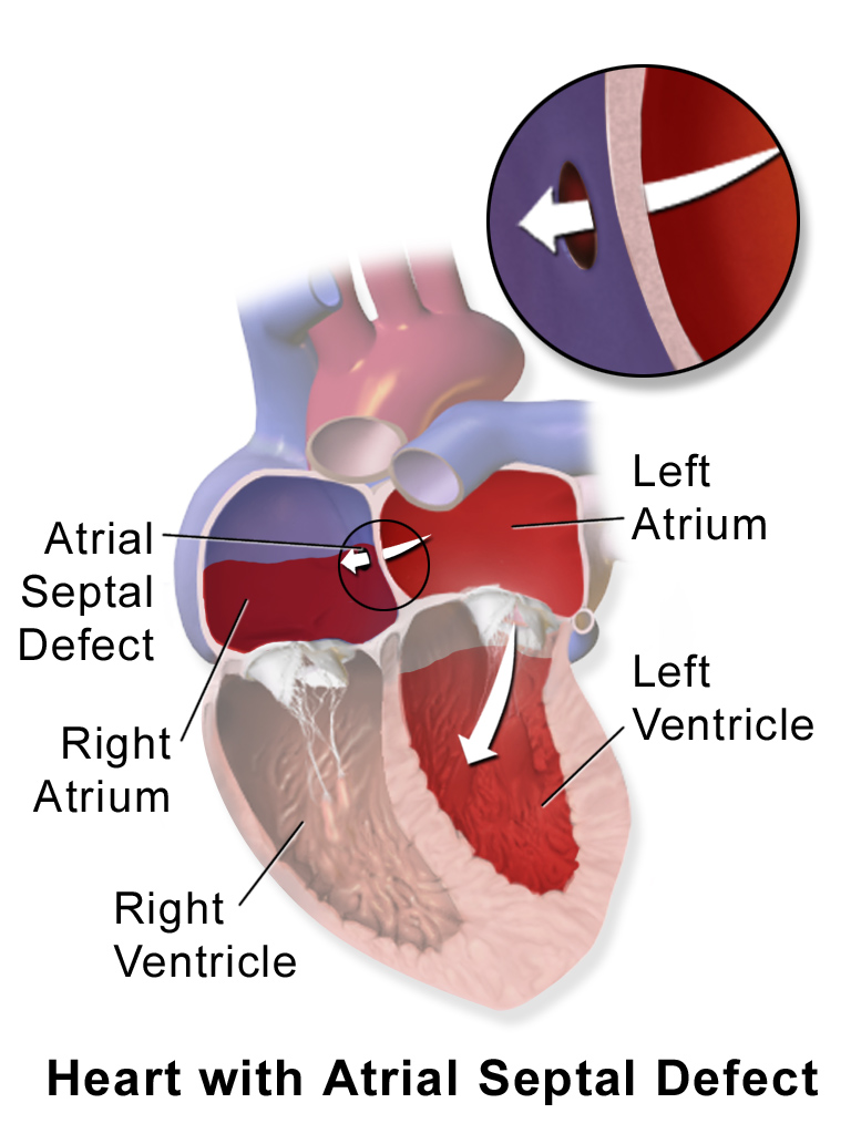 Atrial Septal Defect Explained