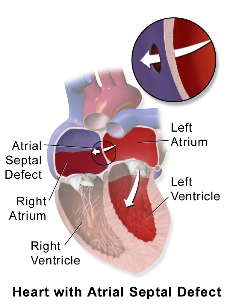 Atrial Septal Defect Explained