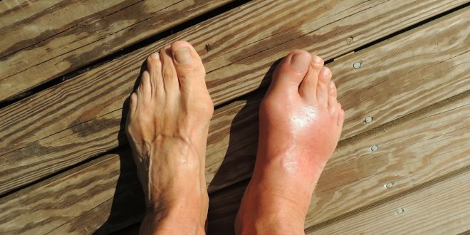 Gout: Causes, Symptoms and Treatment