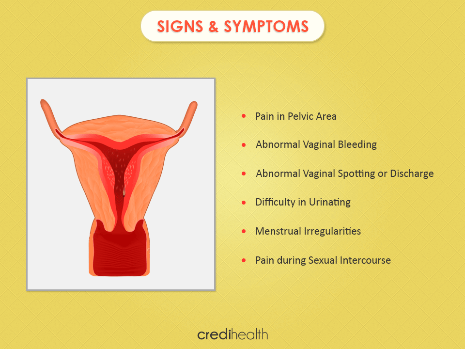 uterine cancer