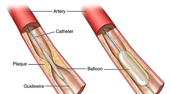 PTCA To Open Coronary Artery Blockages