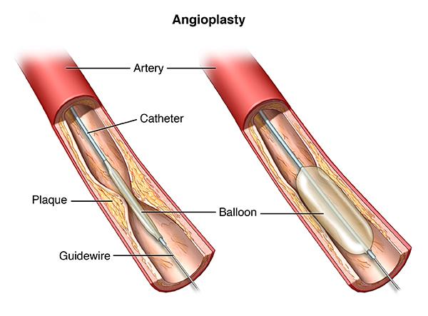PTCA To Open Coronary Artery Blockages