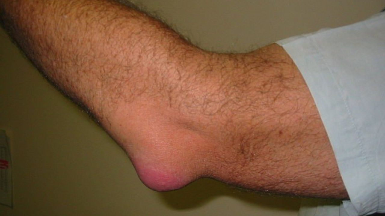 Painful Joints: Understanding Bursitis | Credihealth Blog
