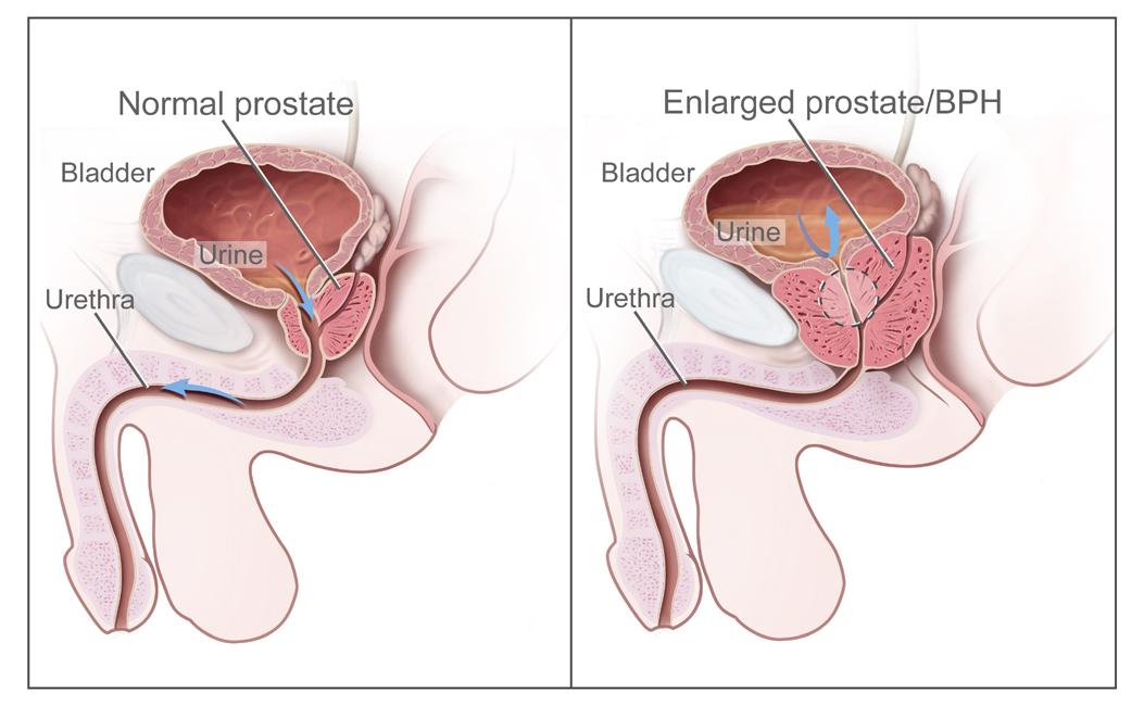 Benign Prostate Hyperplasia BPH