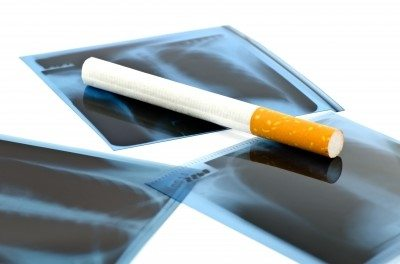 Why Should I Quit Smoking?