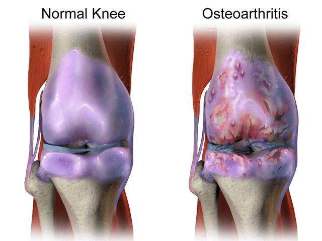 Normal Vs Arthritic Knee