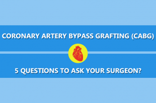 Questions to Ask before CABG
