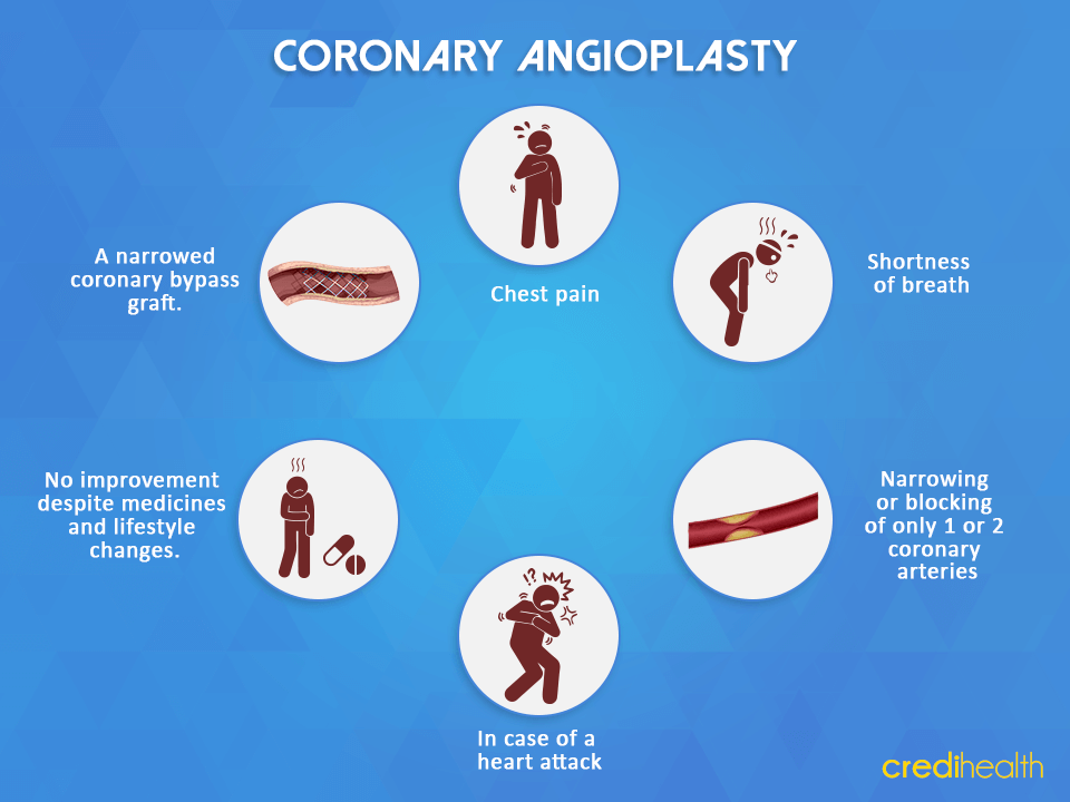 Candidate for Angioplasty