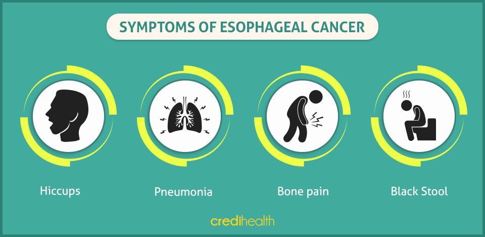 diagnosis symptoms and treatment of esophageal cancer Esophageal cancer symptoms are generally investigated by a gastroenterologist diagnosis of esophageal cancer symptoms is usually conducted through an x-ray method known as the barium swallow, and may also include endoscopy along with a biopsy , and a ct scan of the chest and abdomen.