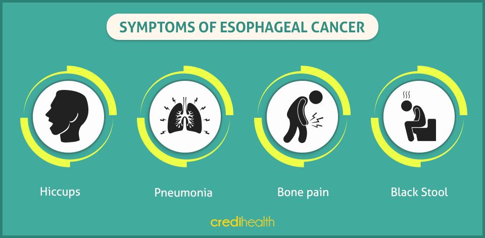 esophageal-cancer-credihealth-2