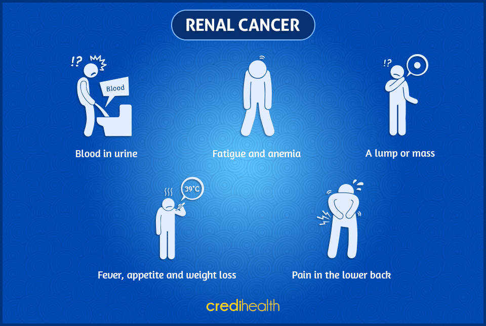 renal-cancer