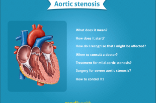 aortic stenosis credihealth