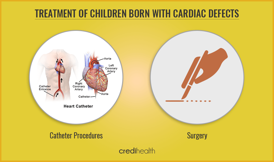 cardiac defects