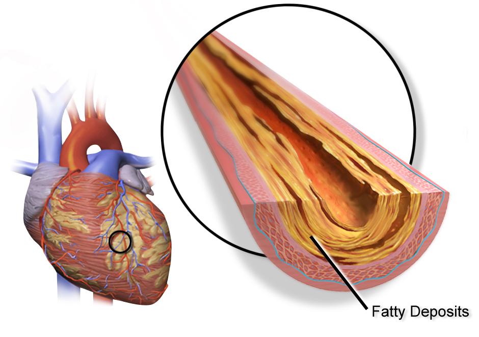 Heart Bypass Surgery vs Angioplasty