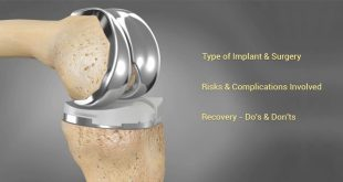 Knee-Replacement-credihealth