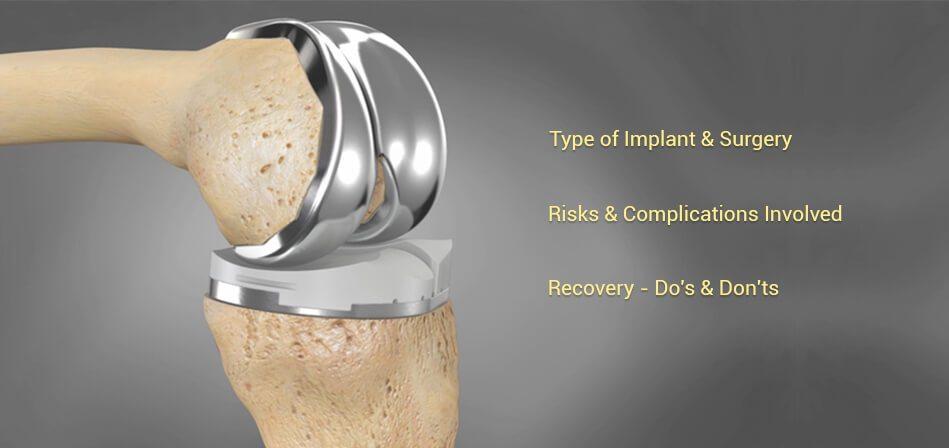 Knee-Replacement-credihealth