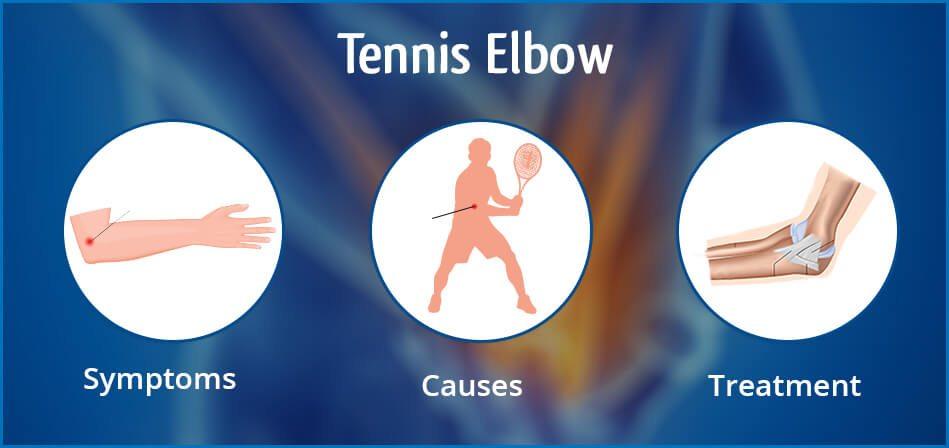 Tennis-Elbow-Blog-post