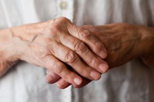 things to know about arthritis
