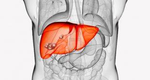 Understanding Liver Cysts