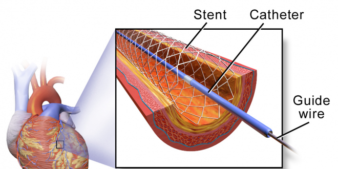 rise in cost of stents by NPPA