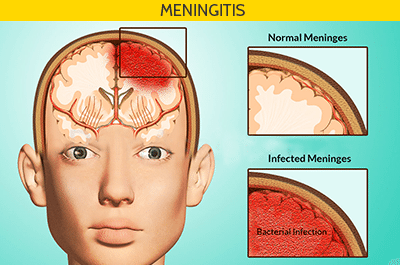 Signs & Symptoms of Meningitis