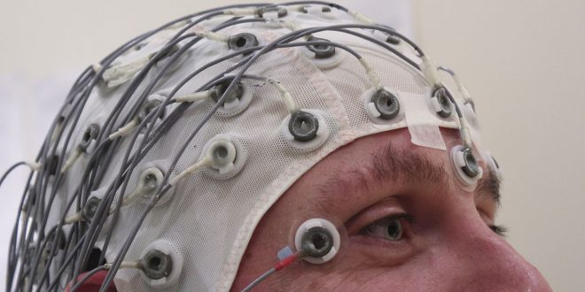 Epilepsy Causes and Risk factors