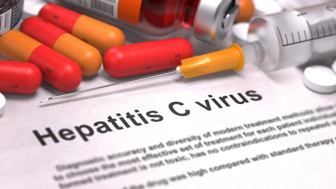 Hepatitis C – Symptoms and Treatment
