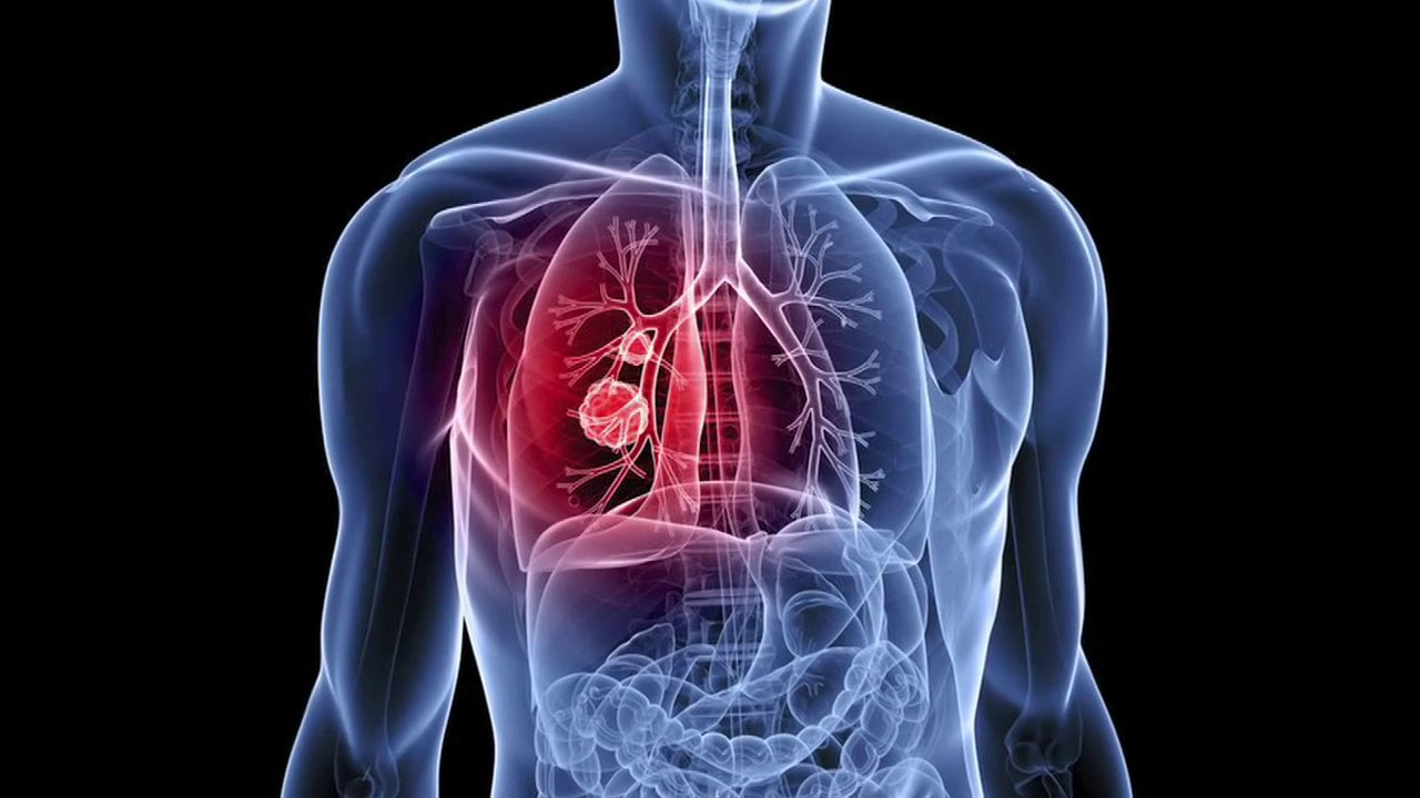 Lung Transplant: Things to keep in Mind