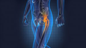 Recovery after hip replacement surgery 300x169