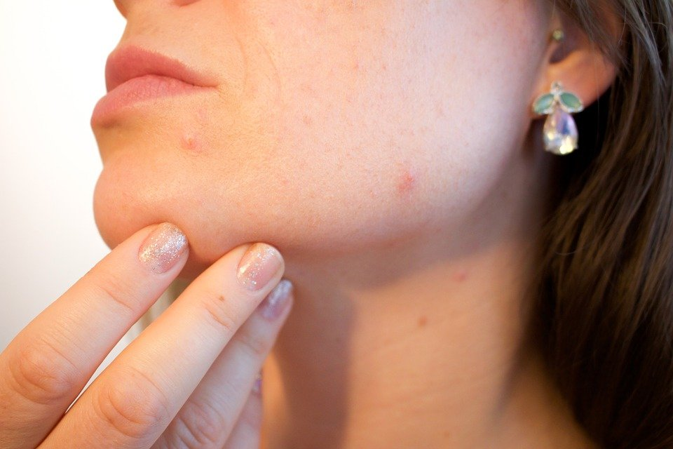 psoriasis, acne causes risk factors and treatment