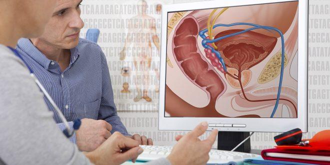 Prostate Cancer doctor