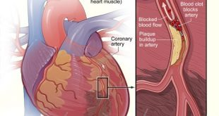 Causes of Heart Attack and Risk Factor
