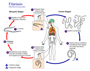 what is filariasis - types of filariasis
