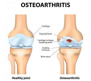 Arthritis in Hindi
