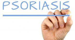 psoriasis in tamil