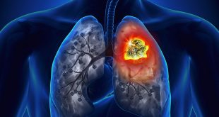 Lung cancer symptoms in Hindi - Lung cancer in Hindi