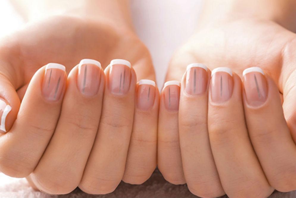 The Black Line on Nail: Splinter Hemorrhages