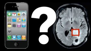 Mobile phone causes cancer