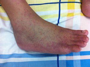 chikungunya symptoms in hindi - chikungunya ke lakshan in hindi