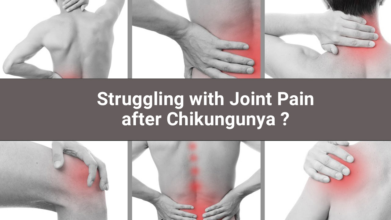 Chikungunya treatment for joint pains - How to treat chikungunya joint pain