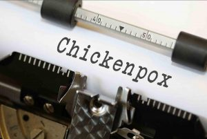 Chicken Pox in Hindi