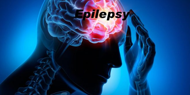 Epilepsy Meaning in Hindi, Epilepsy in Hindi