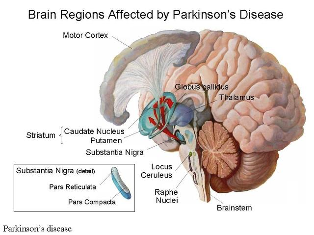 Parkinson's disease in Hindi, Parkinson's disease Meaning in Hindi