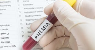 Anemia meaning in Hindi, Anemia in Hindi