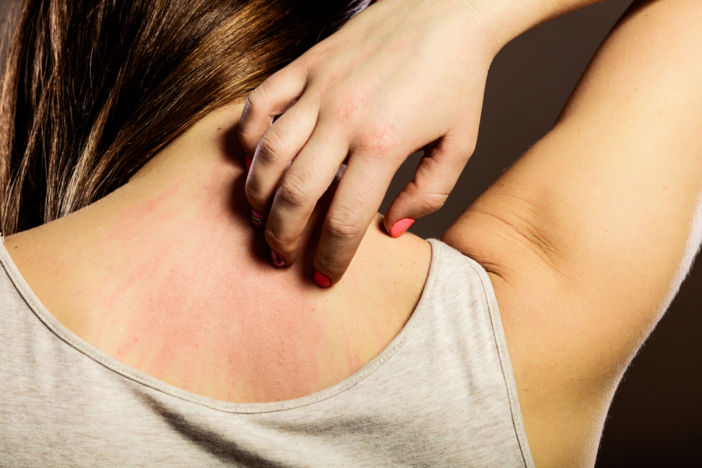 Ayurveda Home remedies for urticaria