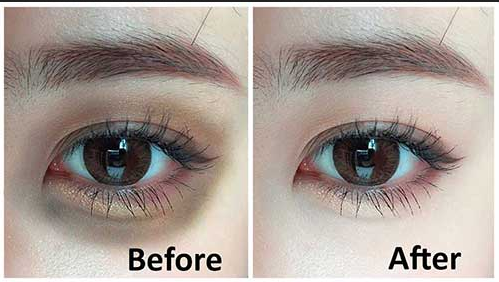 Dark circles ayurvedic remedies