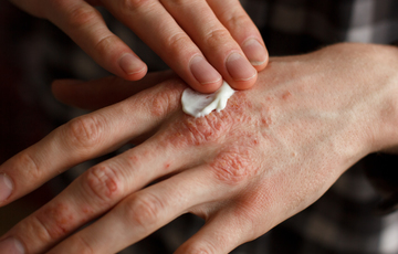 Fungal infection in Hindi, Fungal infection treatment in hindi, Fungal infection on skin treatment in hindi
