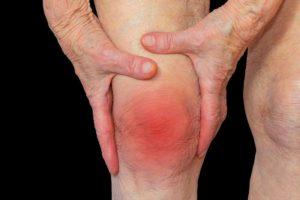 Chikungunya Joint Pain