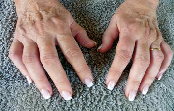 Ayurvedic Treatment for Chikungunya Arthritis